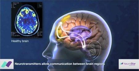 TMS-Neurotransmiters